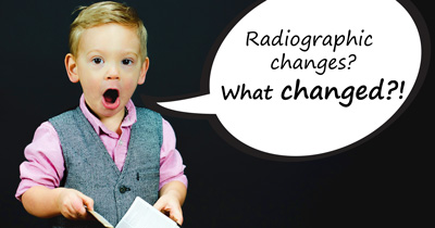 radiograpic changes